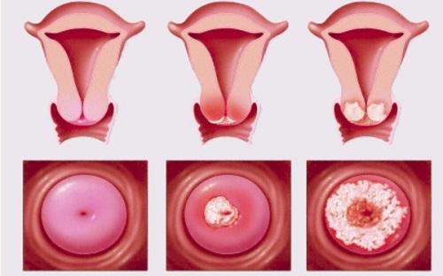 Viêm lộ tuyến cổ tử cung 0,5cm là cấp độ mấy